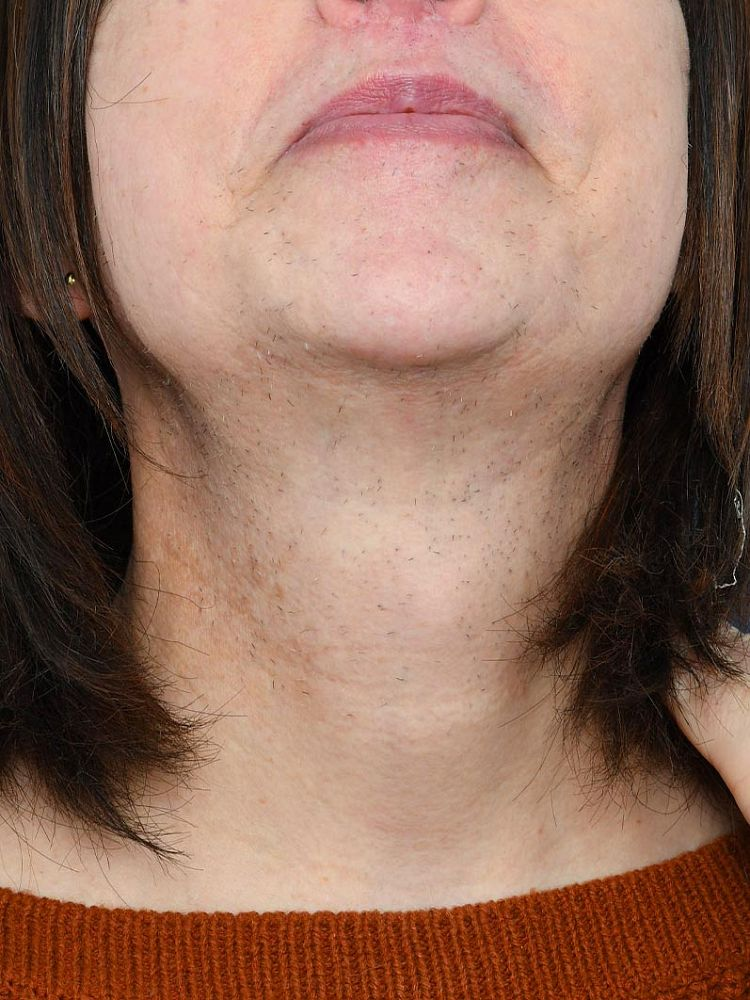 Result after 38 hours of electrolysis after treatment