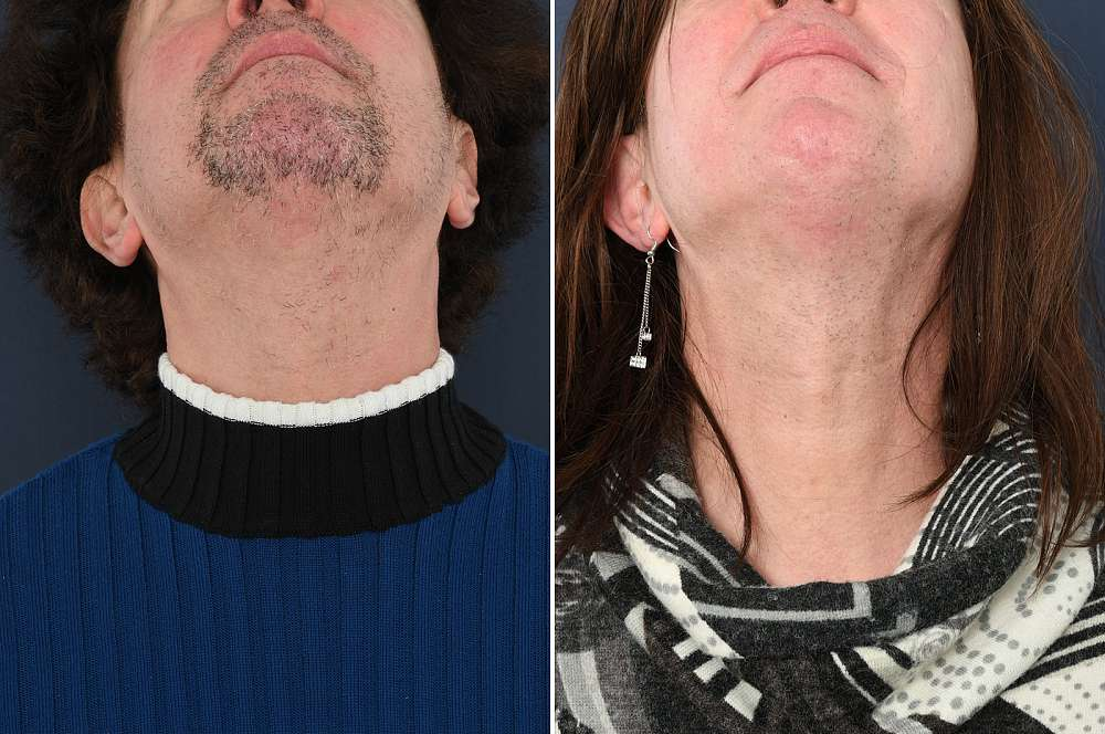 Result after 56 hours of electrolysis before and after