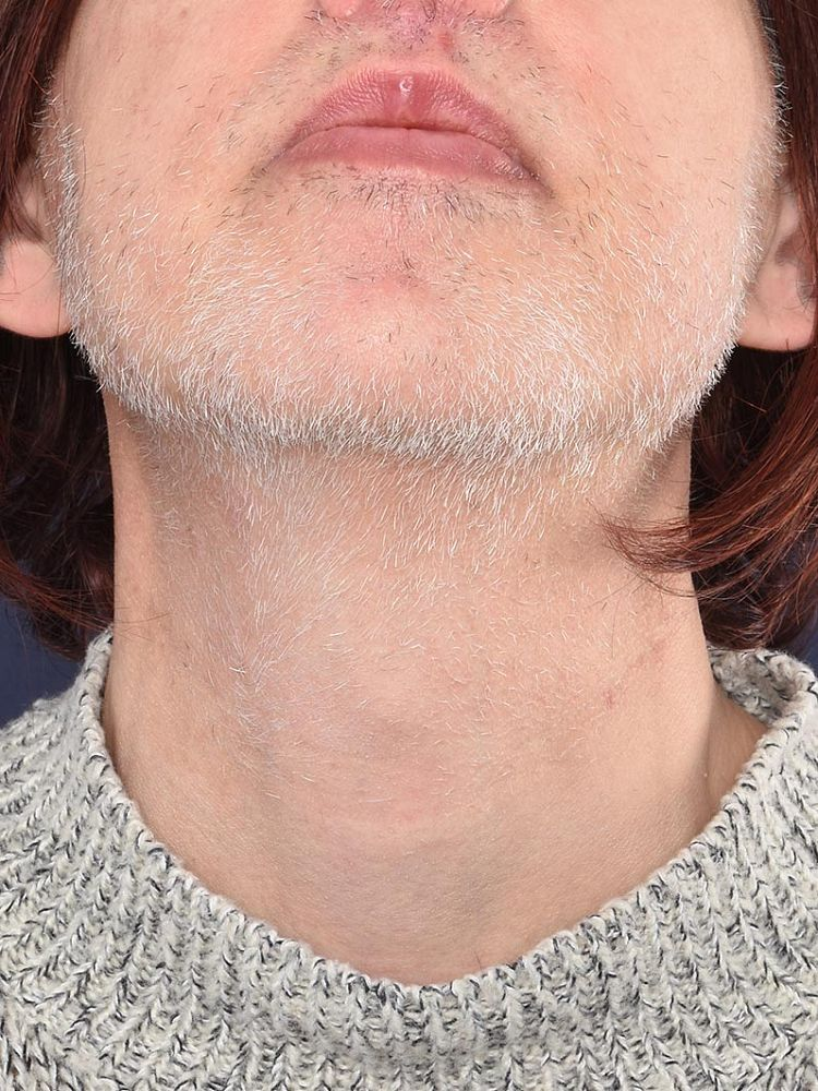 Result after 38 hours of electrolysis before treatment