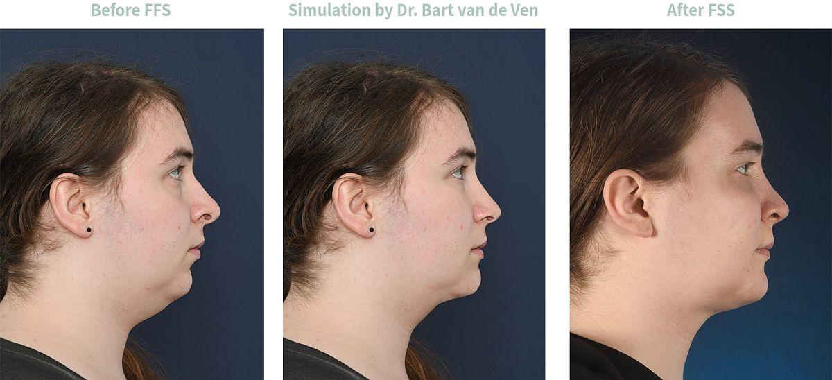 Picture simulation Facial Feminization Surgery Ronja