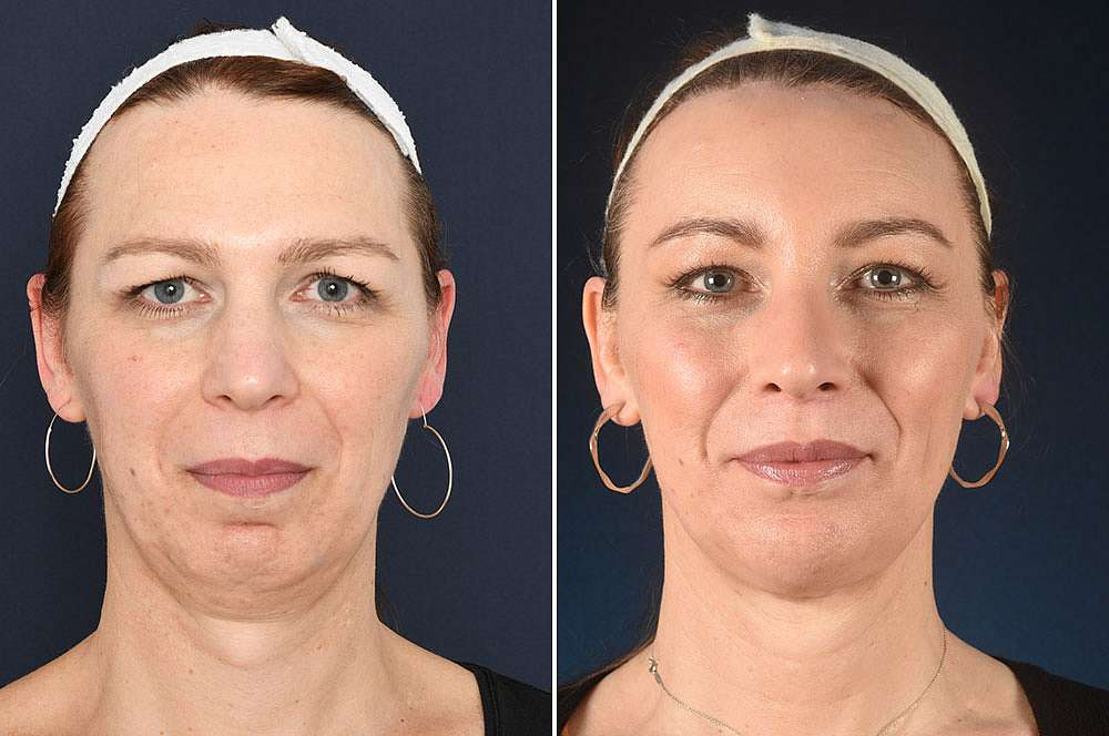 Carys voor en na Facial Feminization Surgery