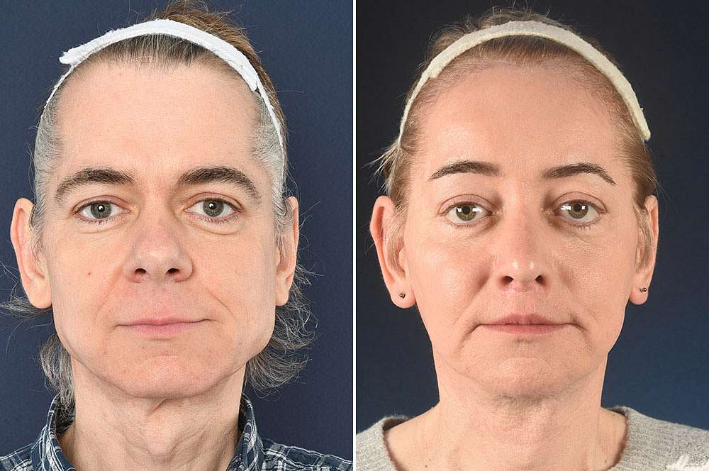 Casady voor en na Facial Feminization Surgery