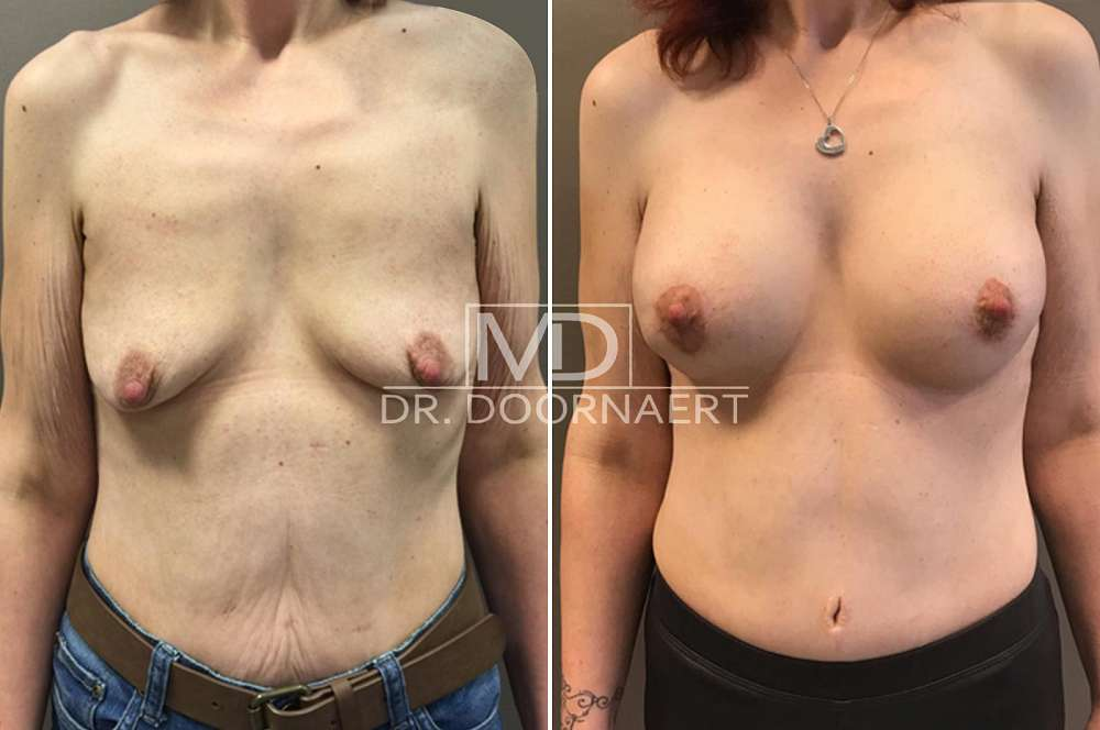 With implant before and after Body Feminization Surgery