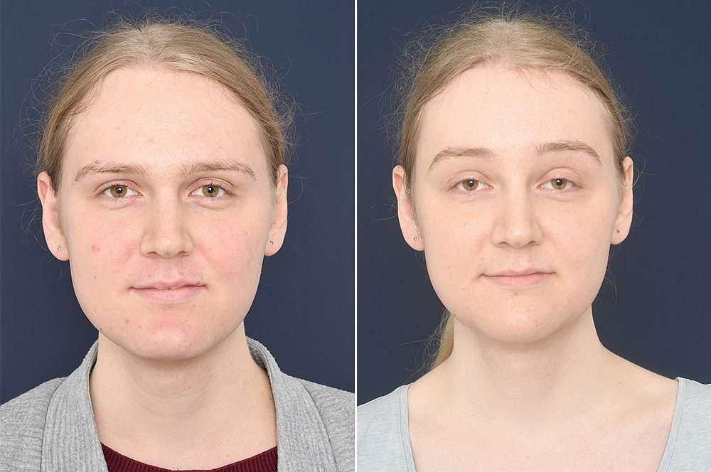 Charlotte vor und nach der Feminisierung des Gesichts