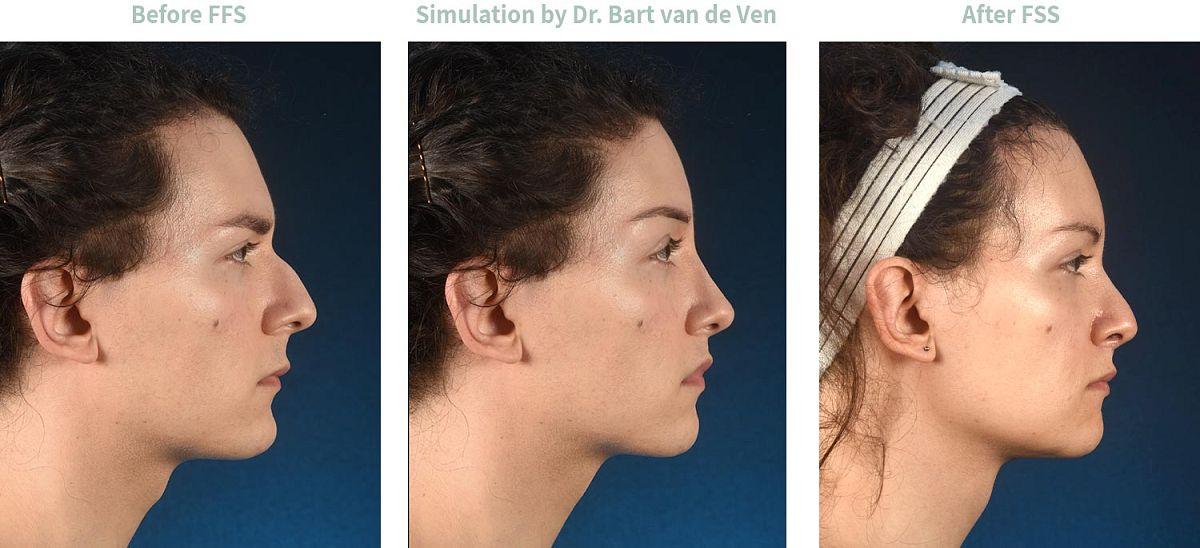 Picture simulation Facial Feminization Surgery Alex