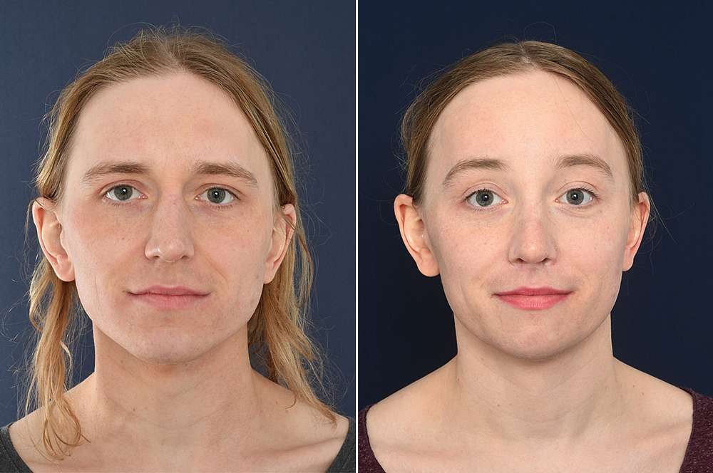 Marie voor en na Facial Feminization Surgery