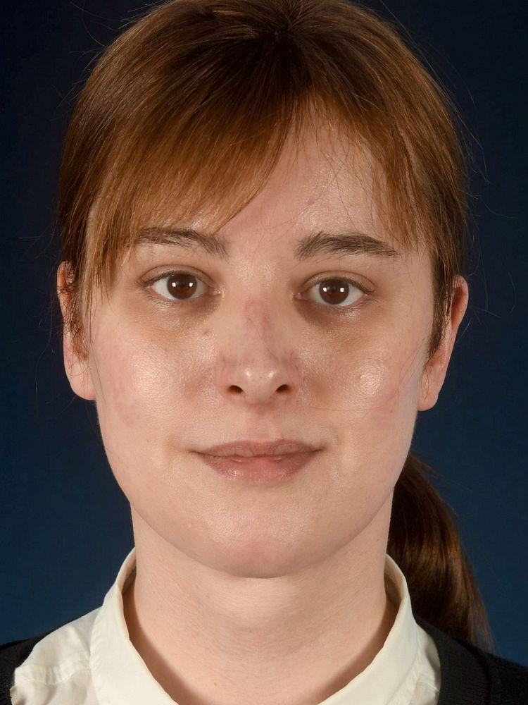 Katharina-Sophia after FFS
