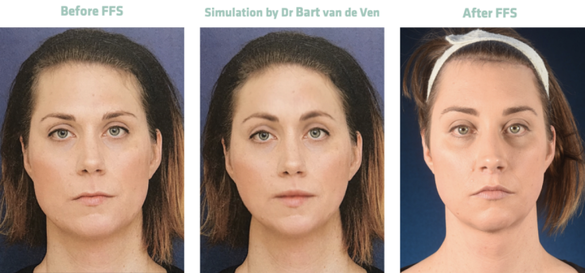 Picture simulation Facial Feminization Surgery Elle