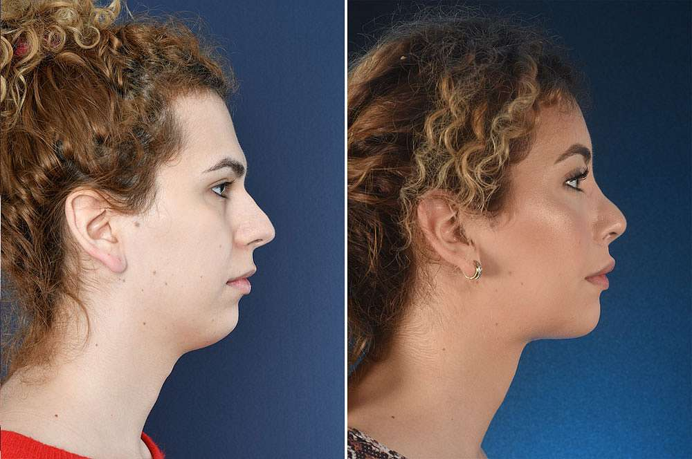 Yarina voor en na Facial Feminization Surgery