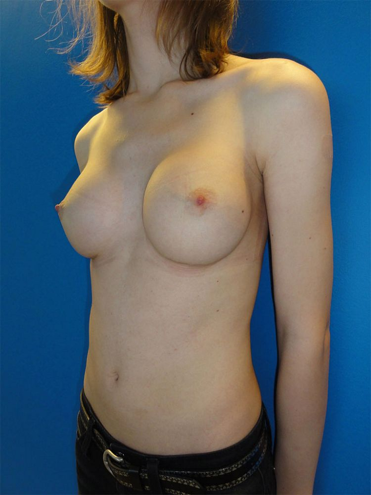 Breast implants - Mtf Nachher BFS