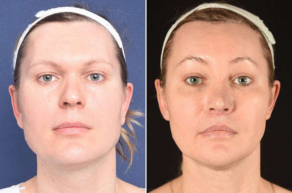 Mila voor en na Facial Feminization Surgery