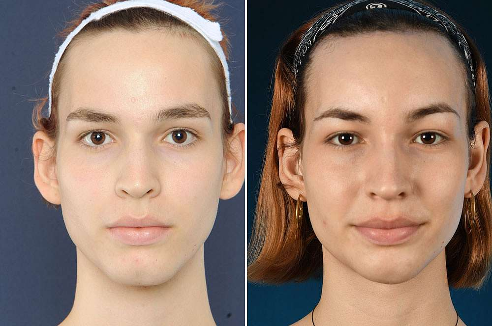 Franka voor en na Facial Feminization Surgery