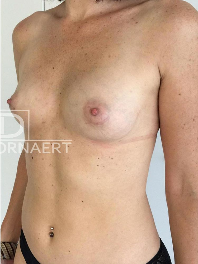 Lipofilling breasts after BFS