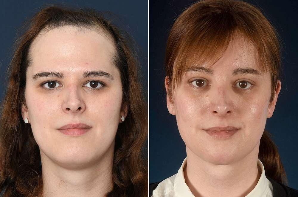 Katharina-Sophia vorher und nachher Facial Feminization Surgery