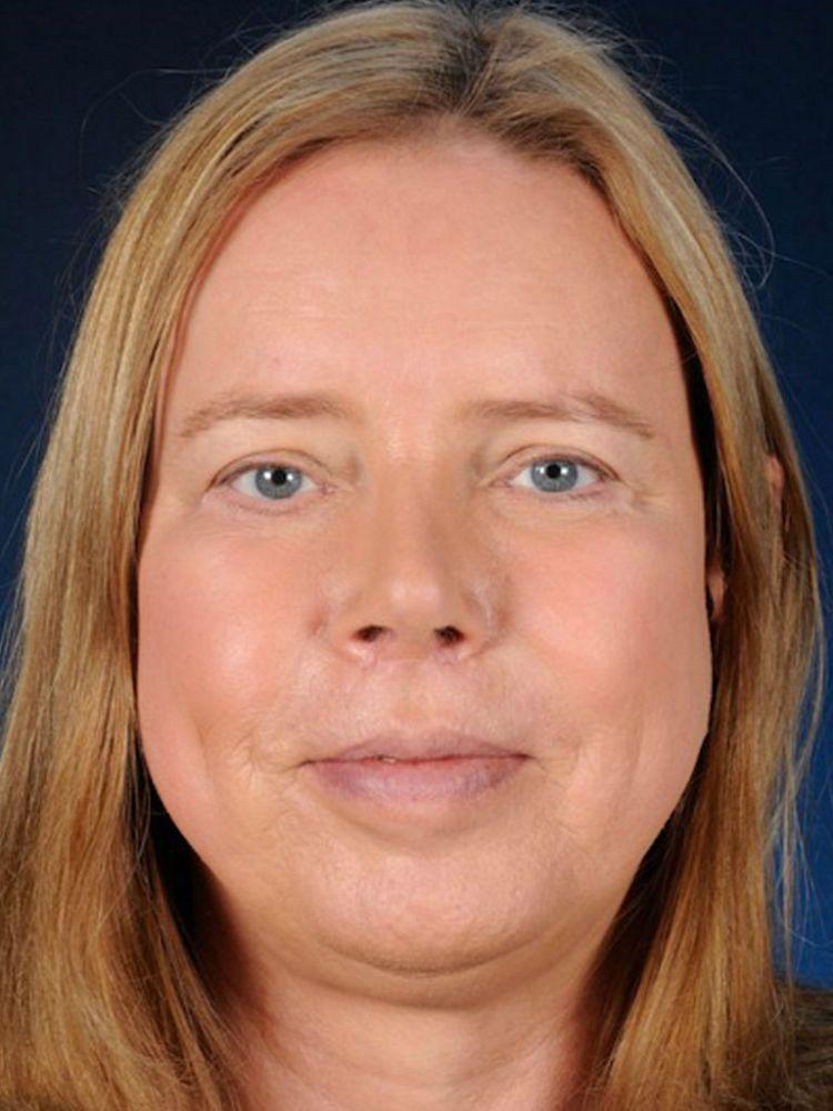Beatrice After FFS