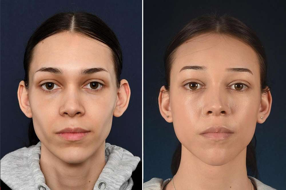 Sophia before and after Facial Feminization Surgery