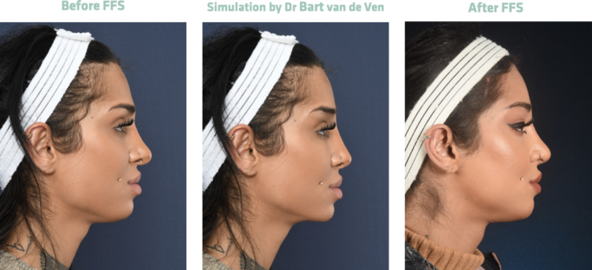 Picture simulation Facial Feminization Surgery Alev