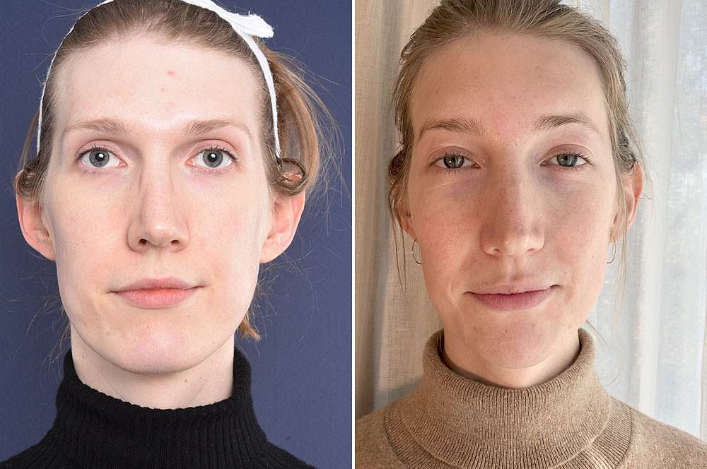 Steffie before and after Facial Feminization Surgery