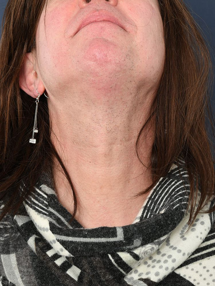 Result after 56 hours of electrolysis after treatment