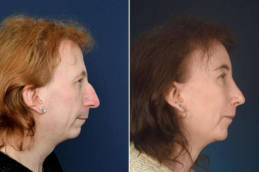 Signý before and after Facial Feminization Surgery