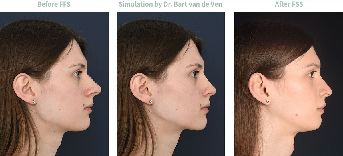 Picture simulation Facial Feminization Surgery Nicole