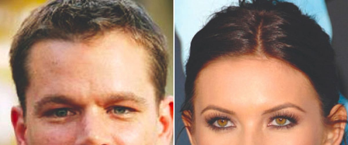 Female hairline vs male hairline: 4 main differences