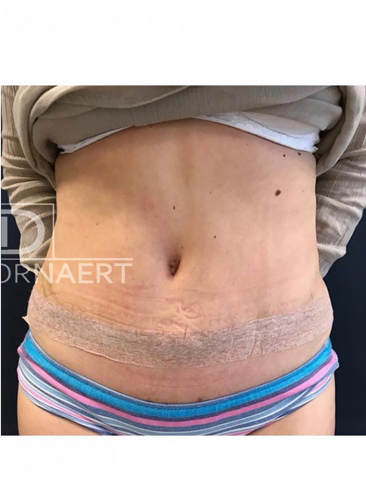 Tummy Tuck Surgery Abdominoplasty after BFS