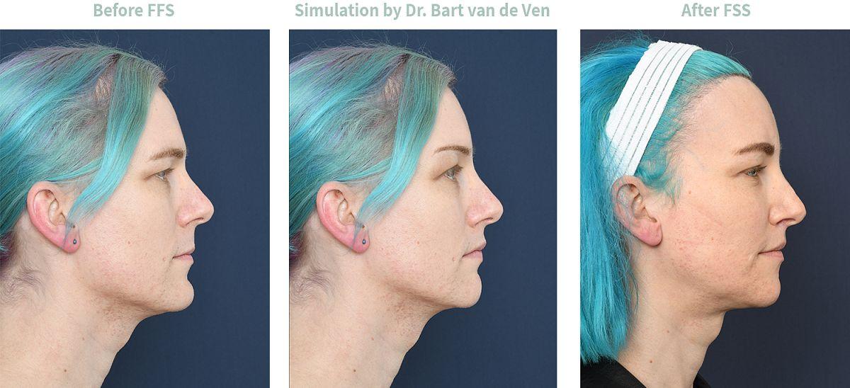 Picture simulation Facial Feminization Surgery Anne