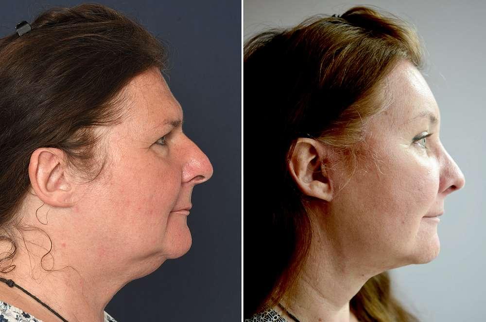 Christine-Michelle voor en na Facial Feminization Surgery