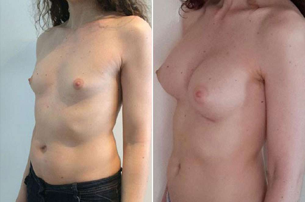 Breast implants - Mtf vorher und nachher Body Feminization Surgery