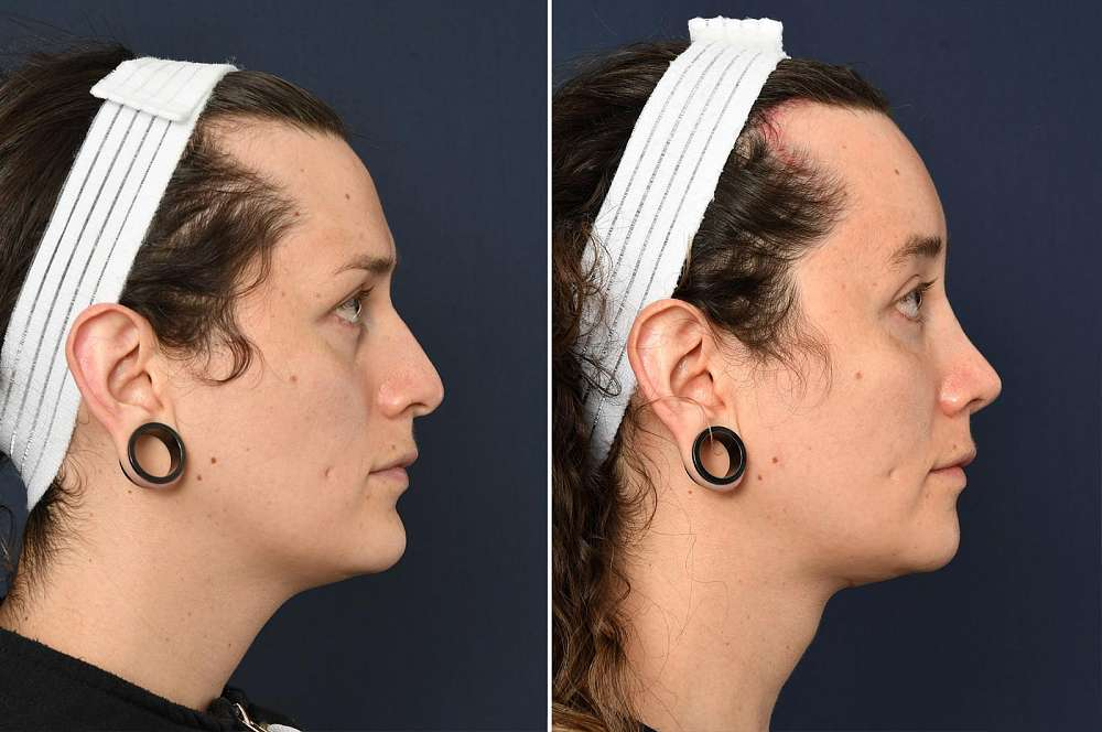 Emilia before and after Facial Feminization Surgery