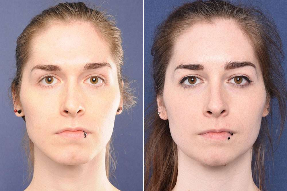 Jana voor en na Facial Feminization Surgery