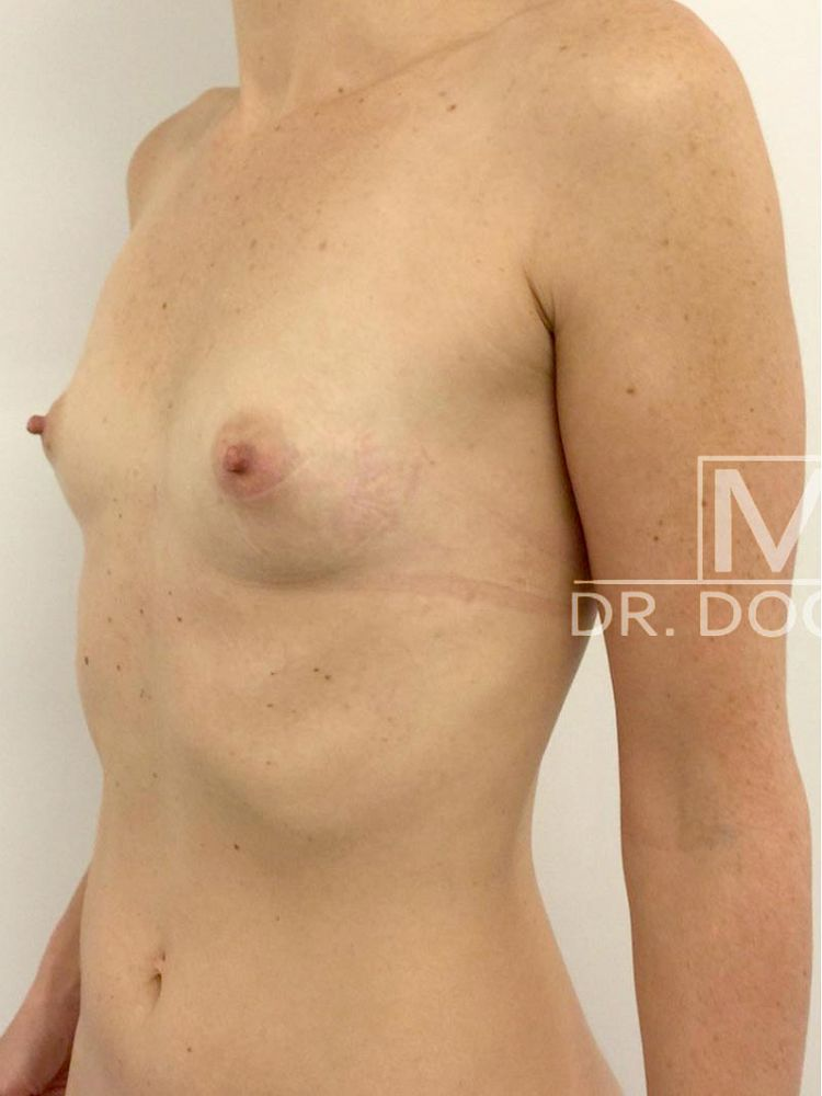 Lipofilling breasts before BFS