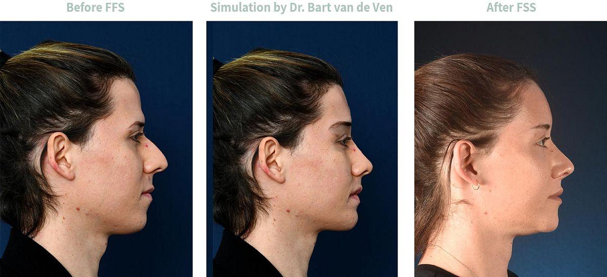 Picture simulation Facial Feminization Surgery Jamina