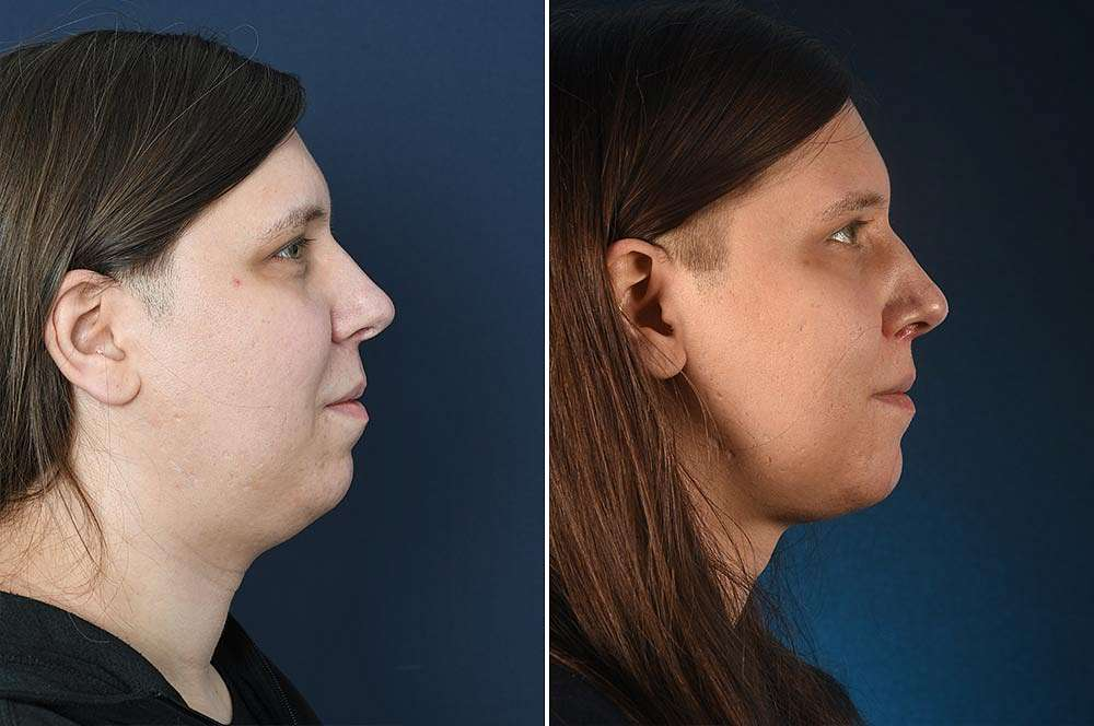 Niki before and after Facial Feminization Surgery