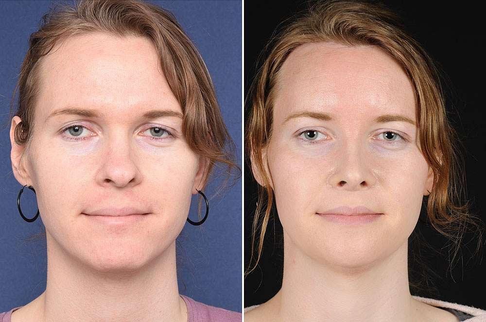 Alexandra voor en na Facial Feminization Surgery