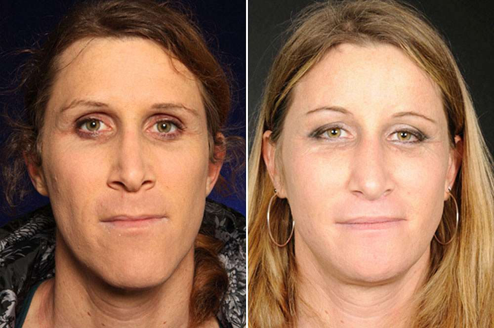 Francesca before and after Facial Feminization Surgery