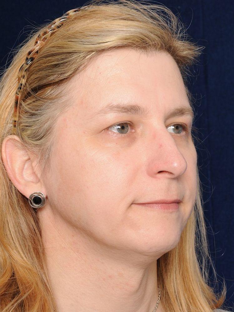 Samantha before FFS