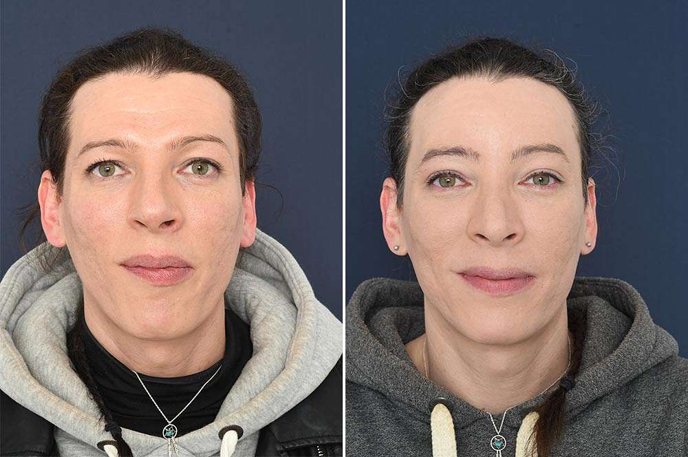 Elie before and after Facial Feminization Surgery