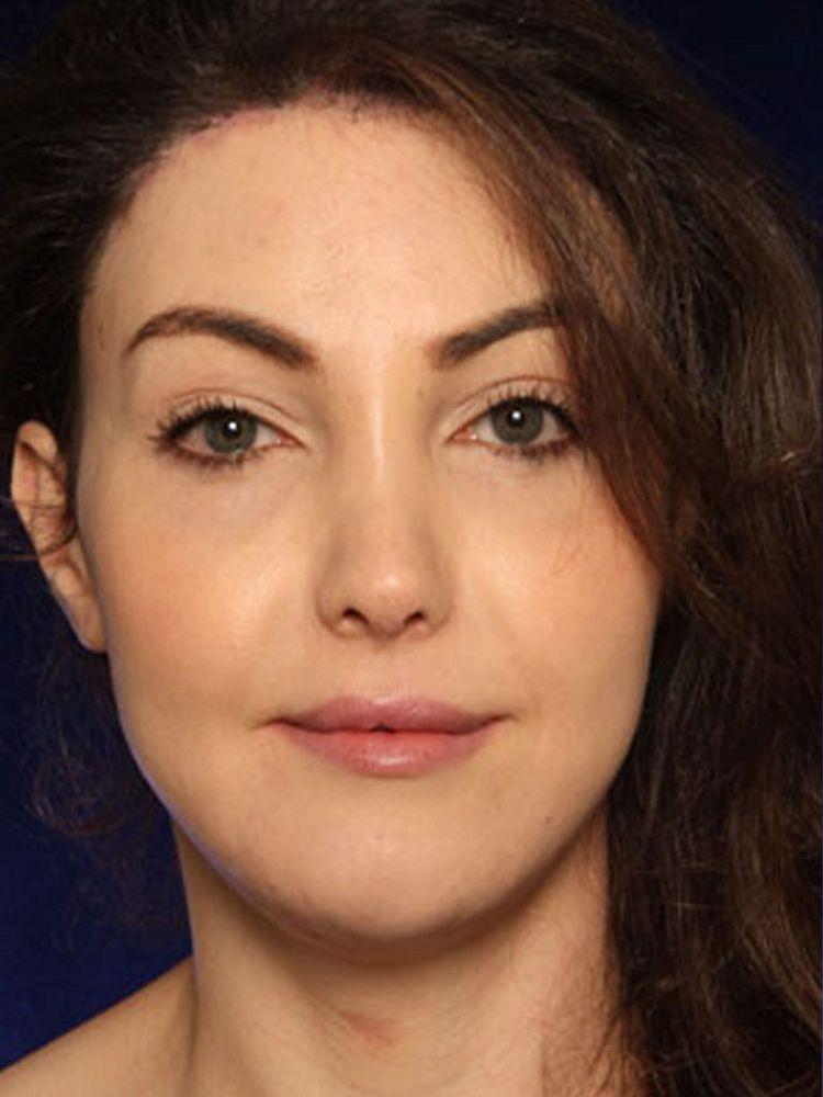 Kate After FFS
