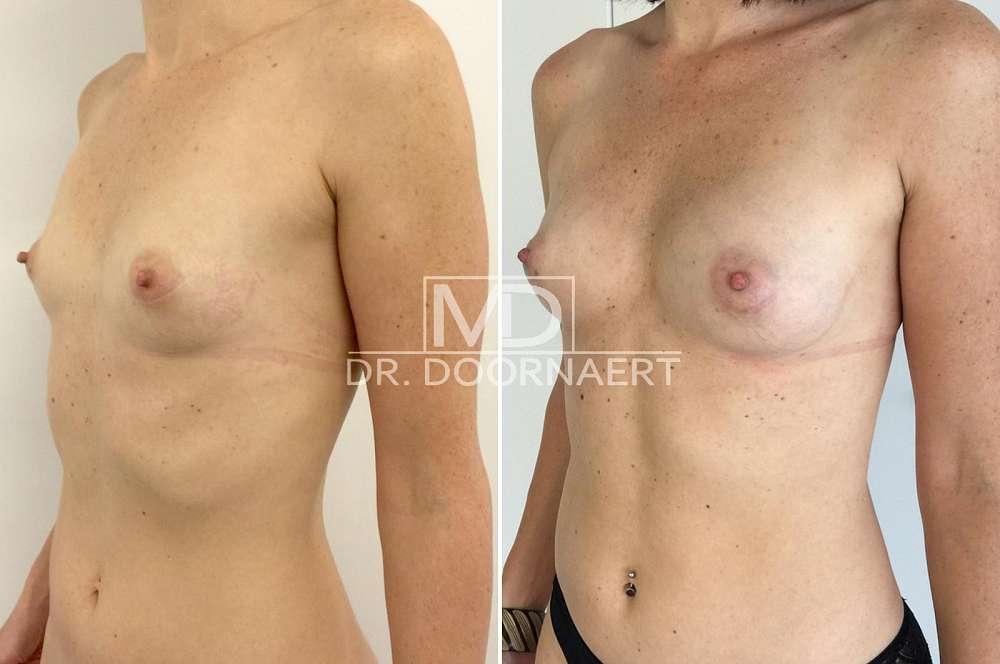 Lipofilling breasts voor en na Body Feminization Surgery