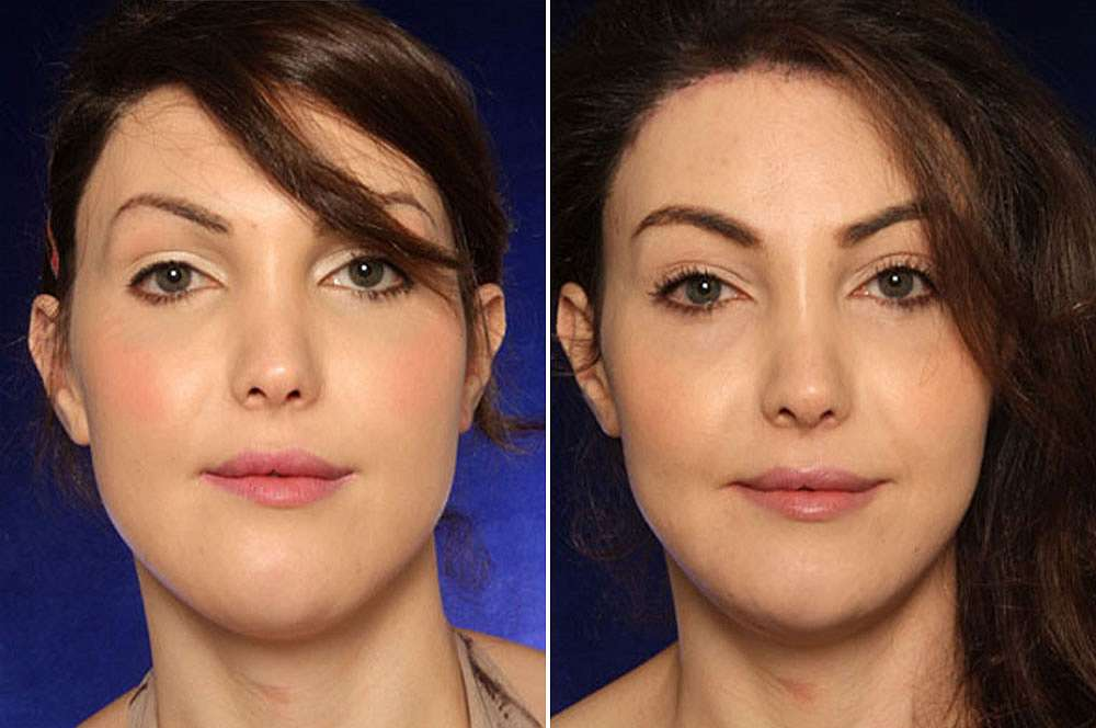 Kate before and after Facial Feminization Surgery