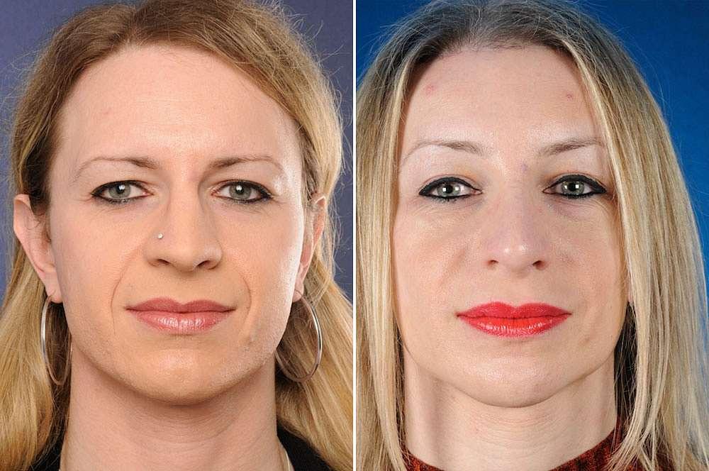 Kymberley voor en na Facial Feminization Surgery