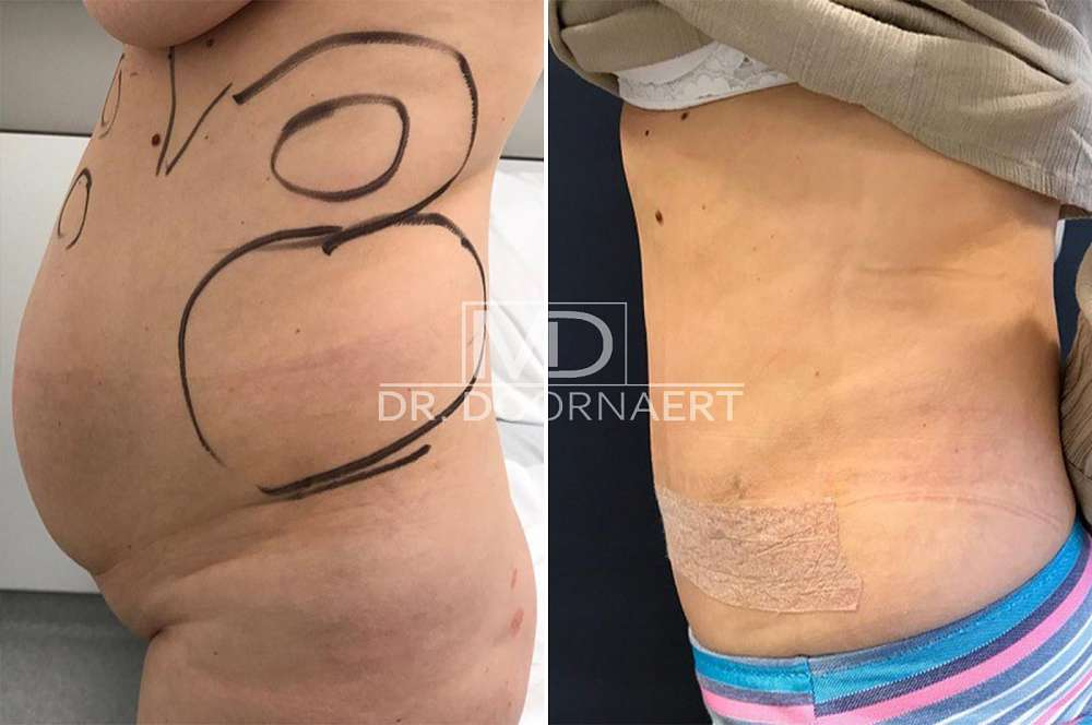 Tummy Tuck Surgery Abdominoplasty voor en na Body Feminization Surgery