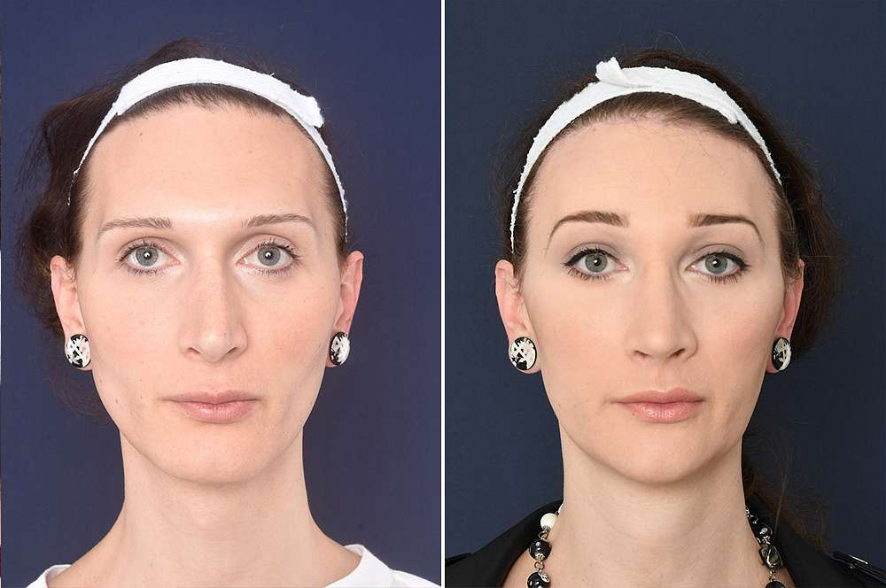 Marleen before and after Facial Feminization Surgery