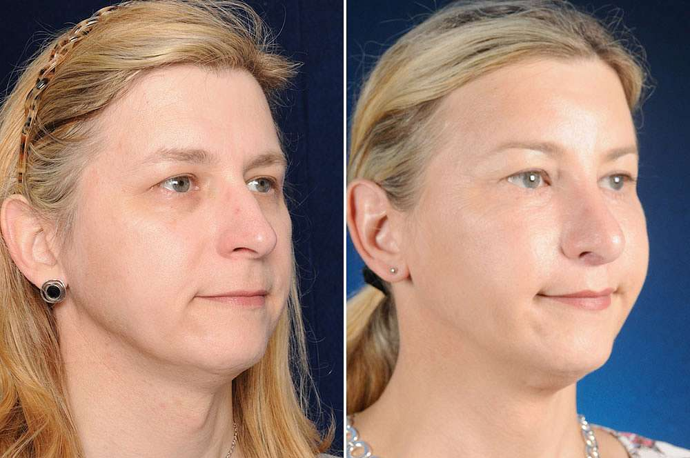 Samantha voor en na Facial Feminization Surgery