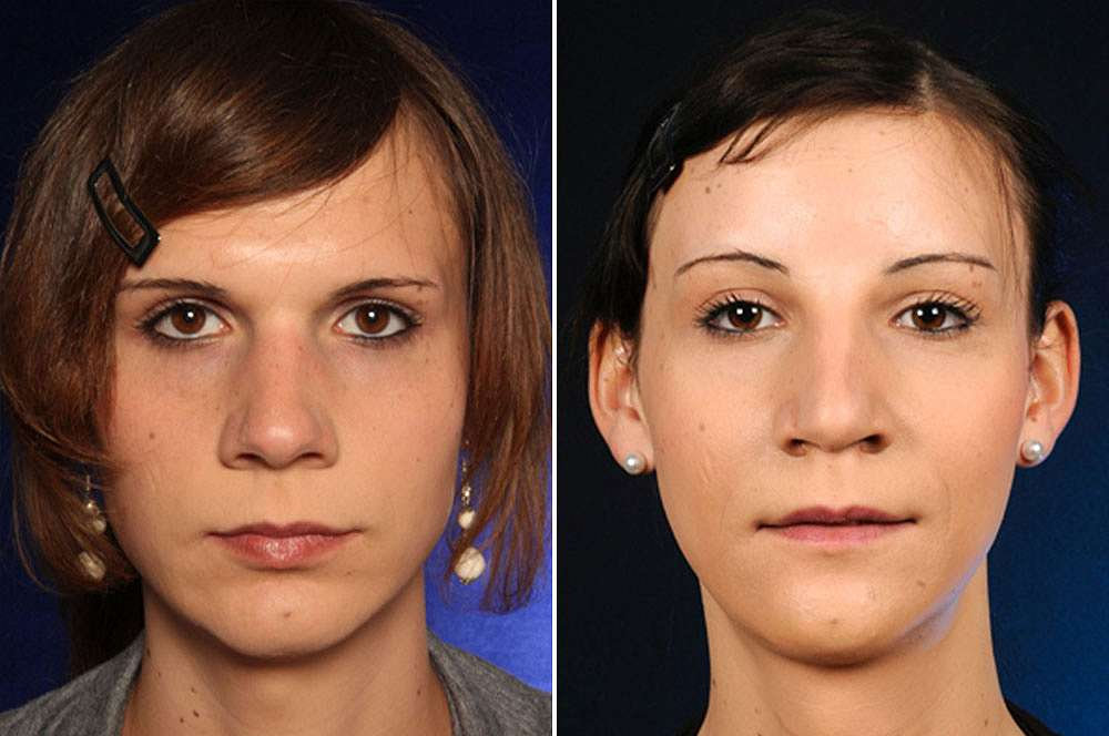 Maria voor en na Facial Feminization Surgery