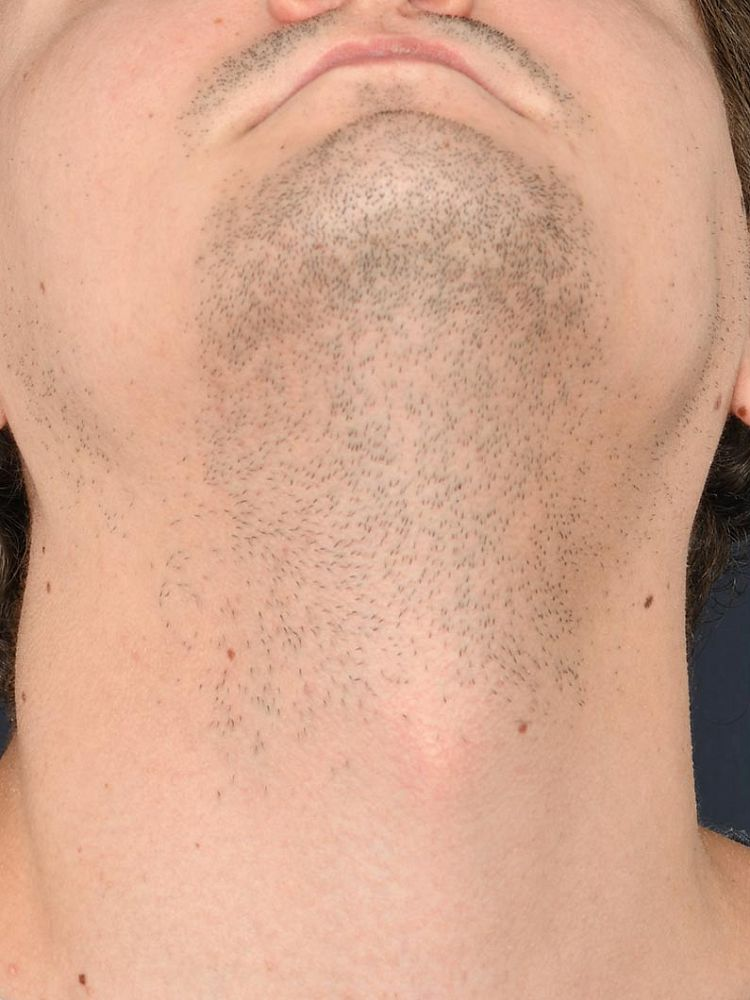 Result after 4 sessions laser treatment before treatment
