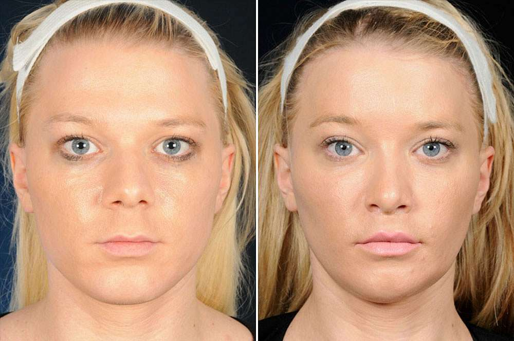 Elisa voor en na Facial Feminization Surgery