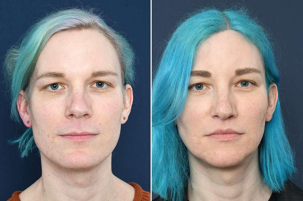 Anne voor en na Facial Feminization Surgery